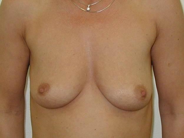 http://lwww.plastika-chirurgie.cz/media/prsa/a.jpg