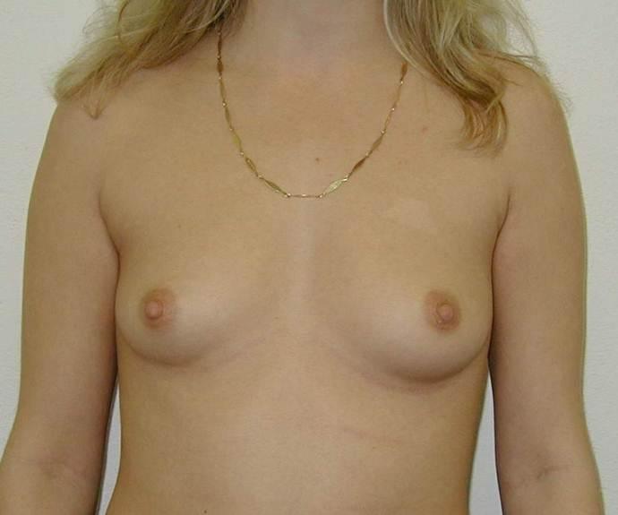 http://lwww.plastika-chirurgie.cz/media/prsa/b.jpg
