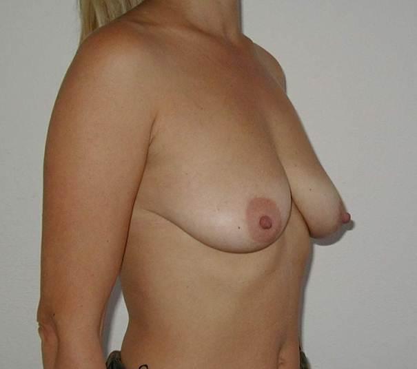 http://lwww.plastika-chirurgie.cz/media/prsa/c.jpg