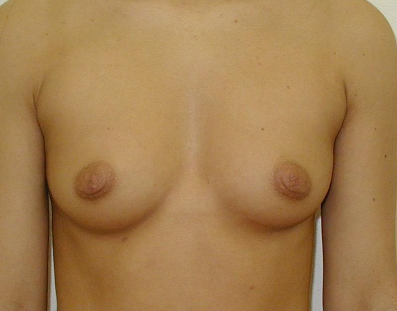 http://lwww.plastika-chirurgie.cz/media/prsa/d1.jpg