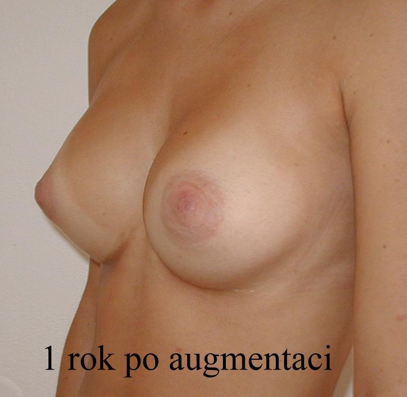 http://lwww.plastika-chirurgie.cz/media/prsa/d3.jpg