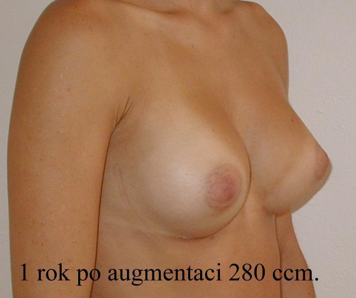 http://lwww.plastika-chirurgie.cz/media/prsa/d4.jpg